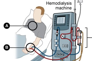 Click to see how dialysis works.
