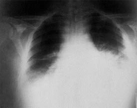 X-ray of lungs infected by inhalation anthrax