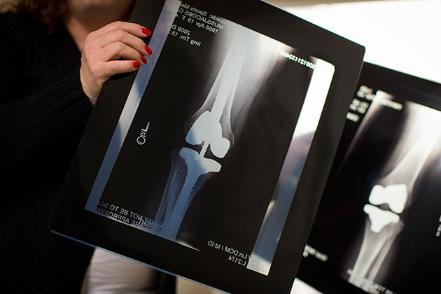 X-rays show Muss-Jacobs' left knee after the joint was replaced using a device that the FDA hadn't approved, right, and after a revision that required inserting metal rods into her femur (upper leg) and tibia (lower leg). (Leah Nash/Special to ProPublica