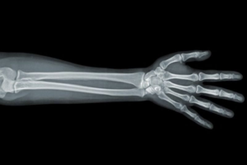 Snooping On the X-ray Tech: A Patient's Dilemma — ProPublica Xray Arm