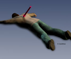 Illustration courtesy of Dr. James Lauridson. After examining Matthew McDonald's autopsy, Dr. Lauridson, a forensic pathologist, found two possibilities for how he was shot, including him lying 'flat on his face.'