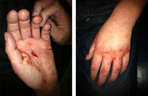 Carson Luke, who is autistic, was 10 years old when public school staff members crushed his hand in a door while trying to close him in a seclusion room at the Southeastern Cooperative Education Program's Deep Creek facility in Chesapeake, Va., three years ago. (Photos courtesy of the Luke Family)